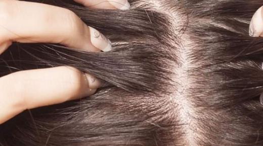 فوائد خل التفاح في علاج قشرة الشعر