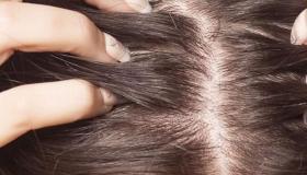أسباب تساقط الشعر بعد الولادة وطرق العلاج