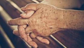 أفضل علاجات للبقع البنية على الجلد