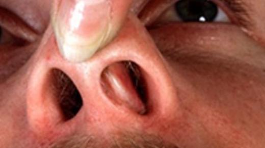 أعراض اللحمية في الأنف