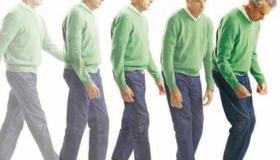 الأعراض الأساسية لـ مرض باركنسون