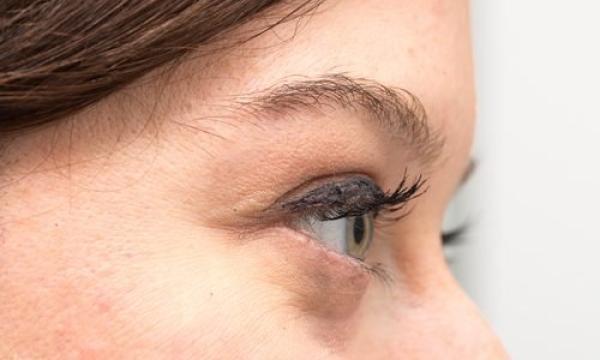 أسباب ظهور أكياس تحت العينين وكيف يمكن معالجتها؟
