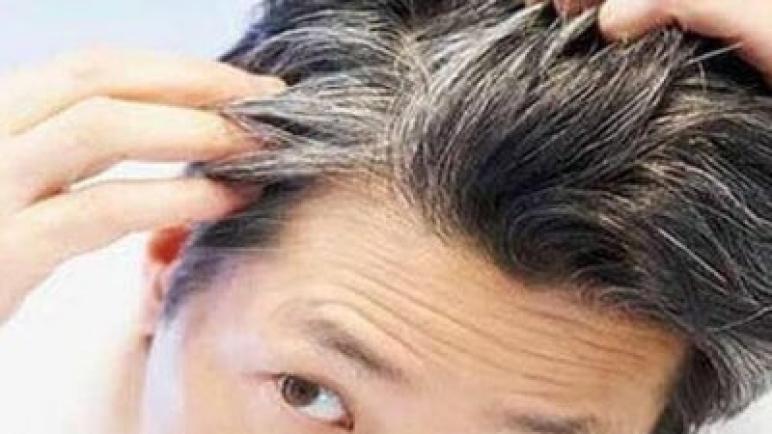 فيتامينات تمنع شيب الشعر المبكر.. تعرف عليها