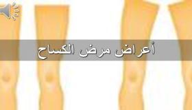 تعرف على أعراض مرض الكساح
