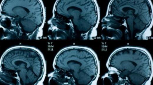 ما هي أعراض ضمور الدماغ ؟