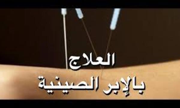 العلاج بالوخز بالإبر