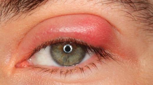 أعراض حساسية العين