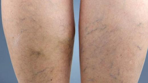 أعراض دوالي الساقين