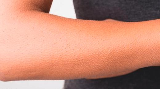 كيفية التخلص من جلد الوزة على اليدين