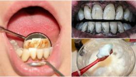 التخلص من جير الأسنان مع الوصفات الطبيعية