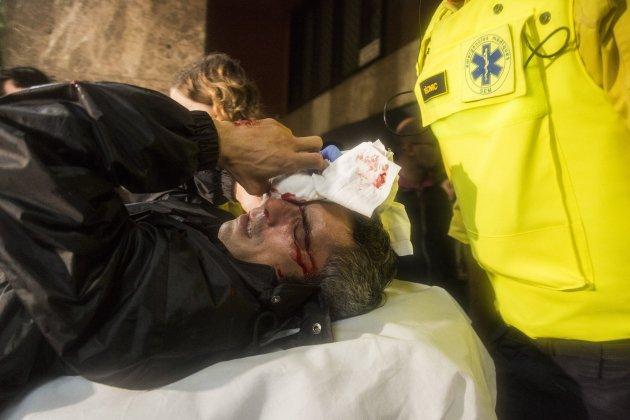 1-O referendum policia Nacional Ull polota de goma - Sergi Alcazar