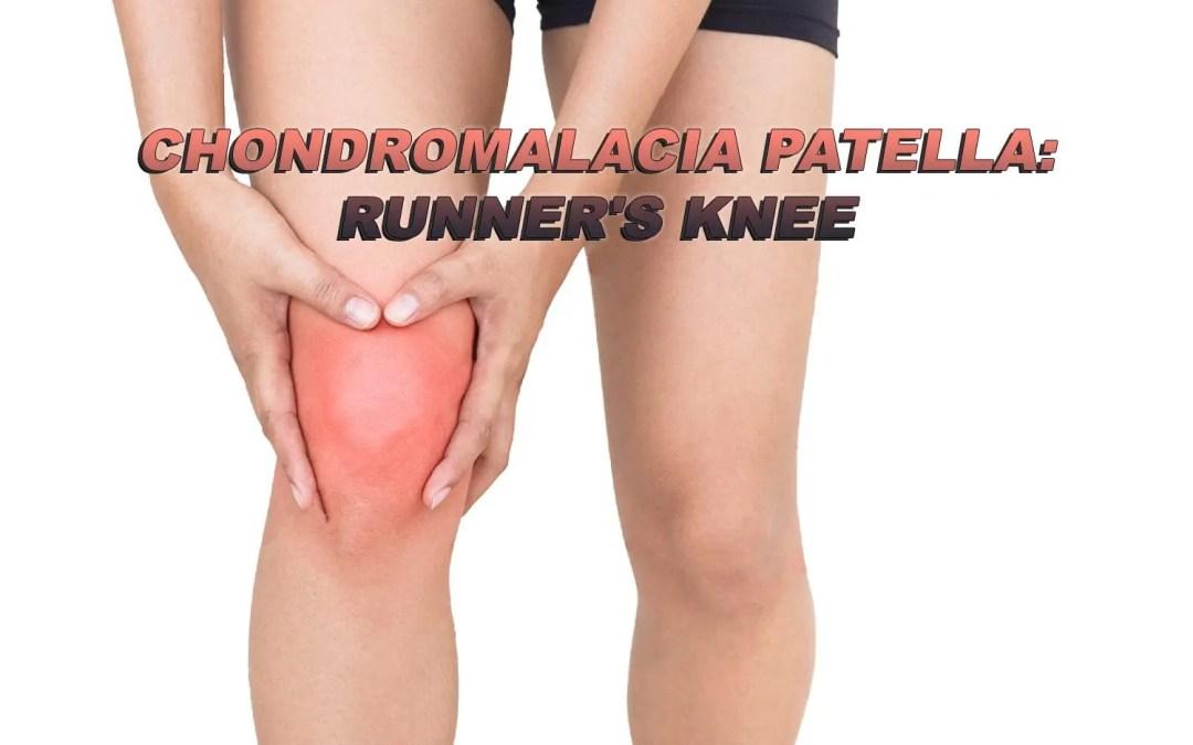 Chondromalacia Patella: Runner's Knee