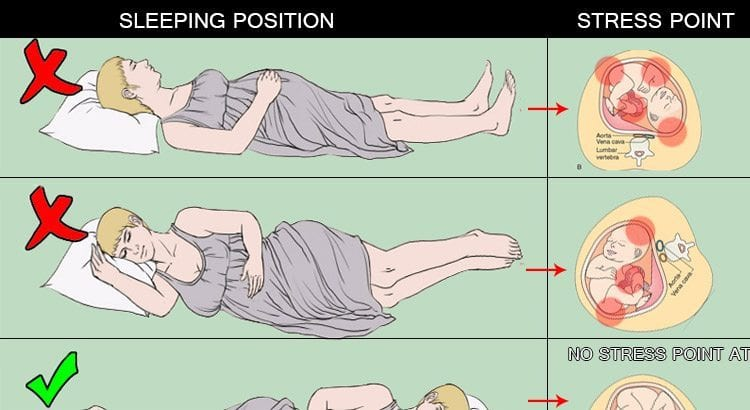 Sleeping Position During Pregnancy With Pictures El Paso Back Clinic