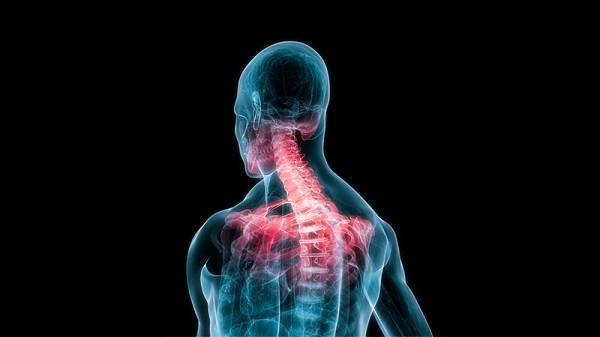 Whiplash Chiropractor: Abnormal Cervical Curvatures