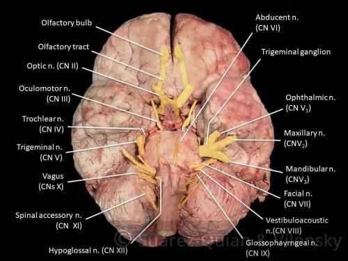 Cranial Nerves Diagram 3 | El Paso, TX Chiropractor