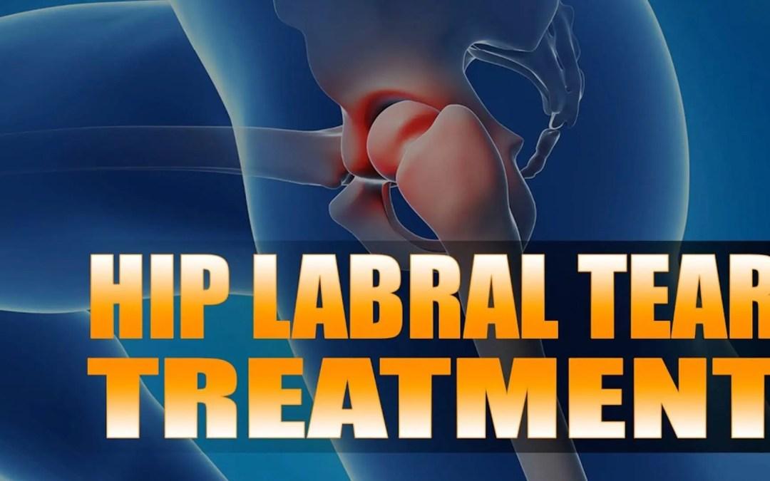 Tratamiento de desgarro de la cadera labral | El Paso, TX. | Vídeo