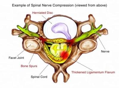 Spinal Stenosis Diagram | El Paso, TX Chiropractor