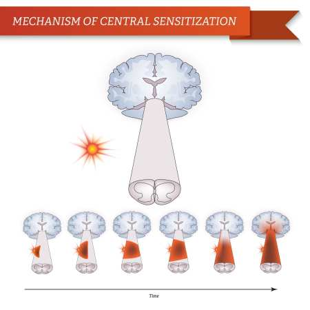 Mechanism of Central Sensitization | El Paso, TX Chiropractor