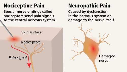 Neuropathic Pain vs Nociceptive Pain Diagram | El Paso, TX Chiropractor