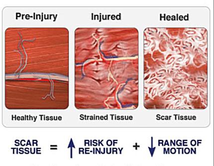 Scar Tissue Diagram | El Paso, TX Chiropractor
