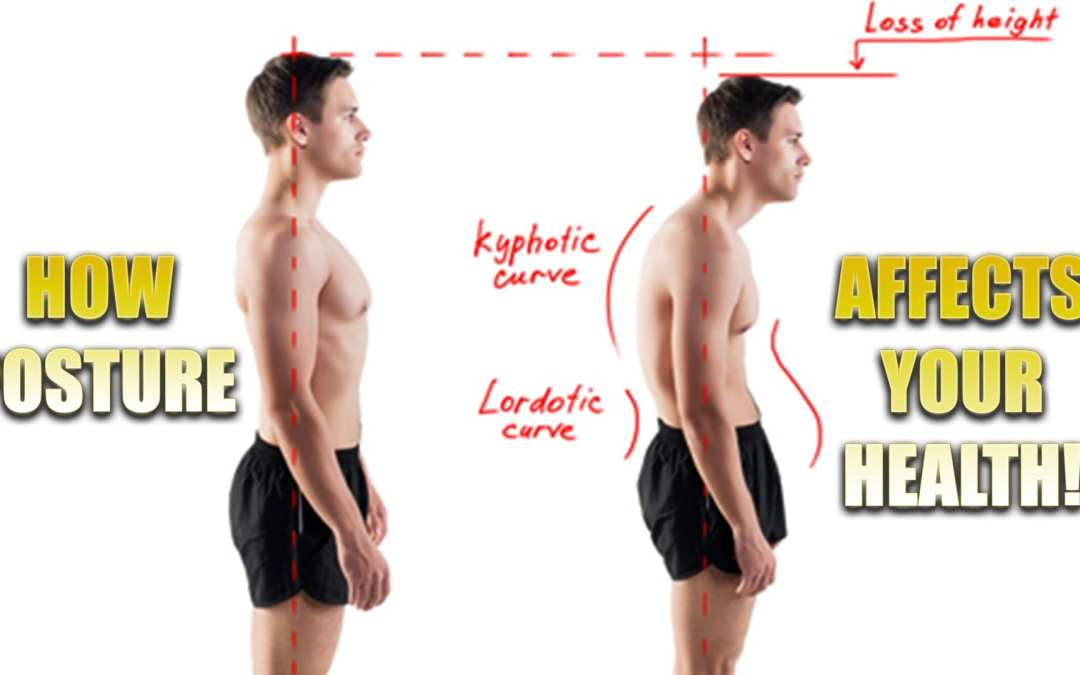 Posture Affects Your Health | El Paso, TX.