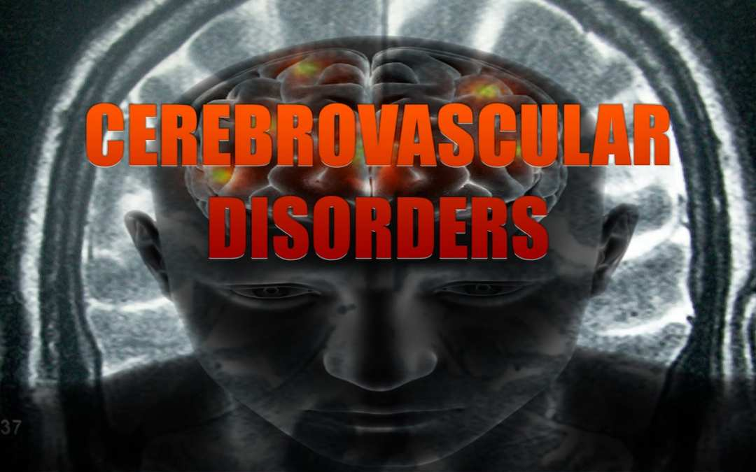 Disturbi cerebrovascolari