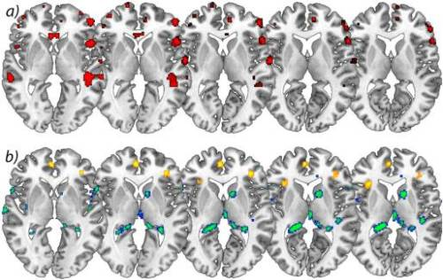 Figure 2 Increases in Brain Gray Matter