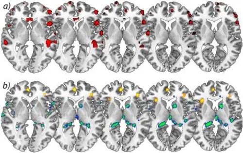 Figura 2 aumenta em matéria cinzenta do cérebro
