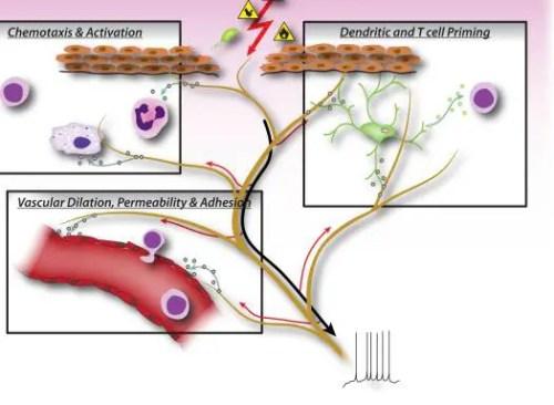 Figure 2 Neuronal Factors Released from Nociceptor Sensory Neurons | El Paso, TX Chiropractor