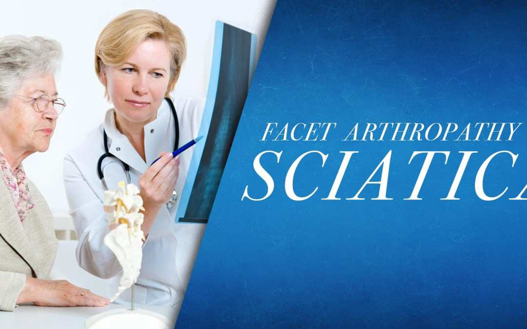Facet Artropatia vs Sciatica