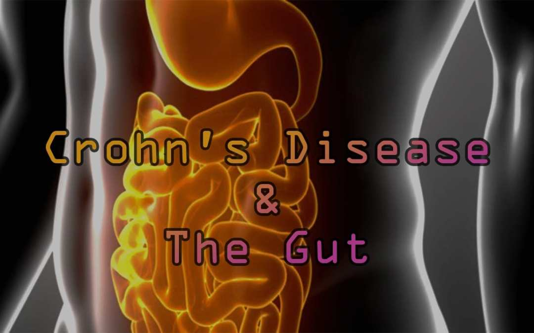 The Critical Link To Crohn's Disease and The Gut
