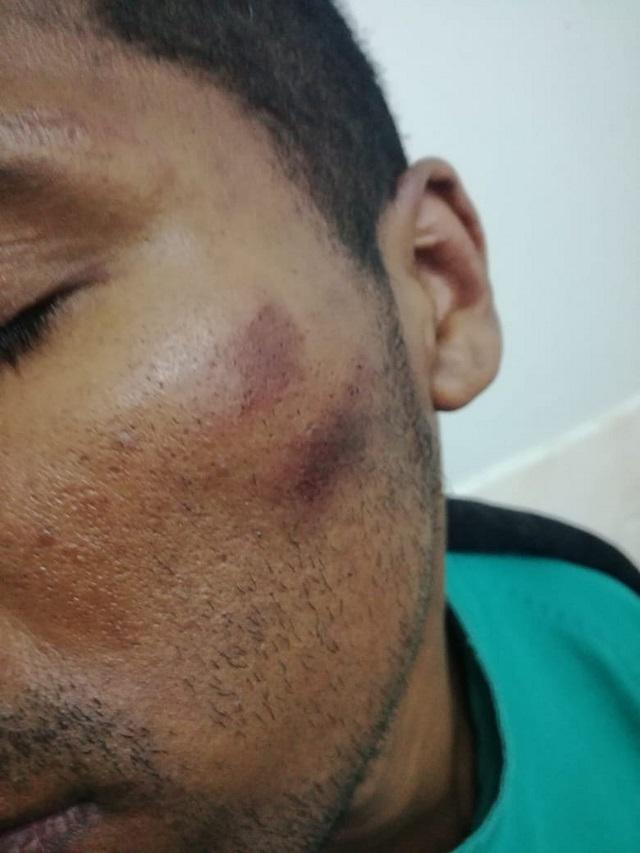 Persona denunció haber sido agredido por policías de Talara
