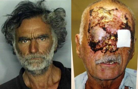 Post-Surgery Photo of 'Miami Zombie' Victim Released