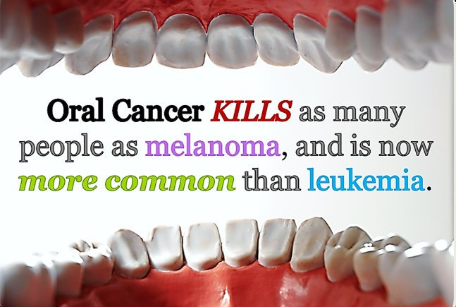 Mouth cancer now the 10th most common cancer in men & 15th in women