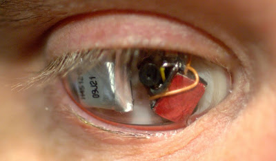 Filmmaker Replaces His Eyeball With A Camera To Conduct Documentaries