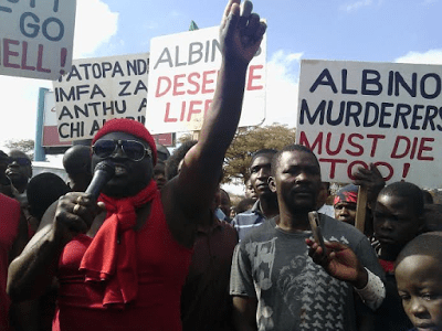 Malawians protest over albino killings  2