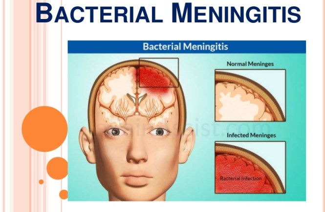 All You Should Know About Bacterial Meningitis - elsieisy blog