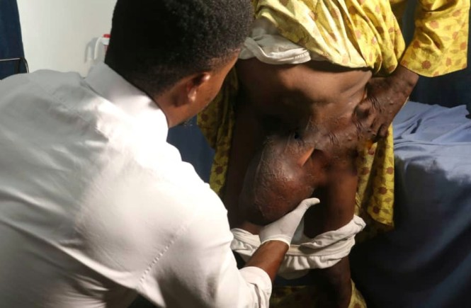 HERNIA PATIENTS GET FREE SURGERY AT SHONOWO HOSPITAL FOUNDATION elsieisy blog