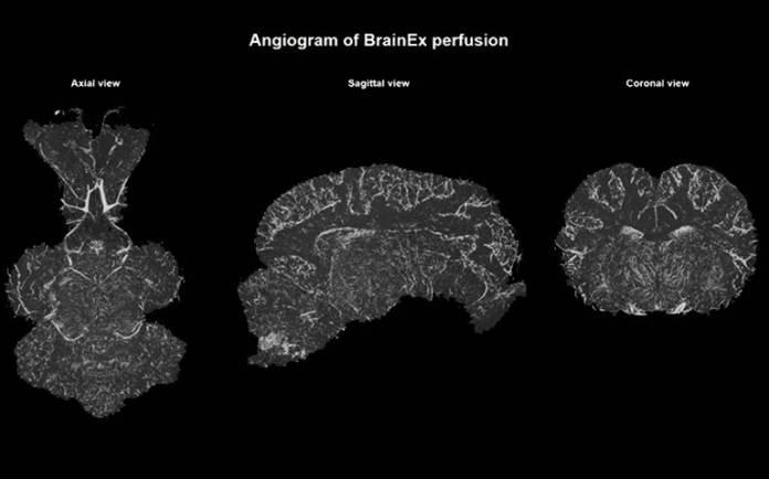 Resultado de imagen para reviven cerebro de cerdos