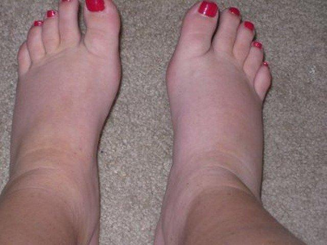 8 razones por las que se hinchan los pies