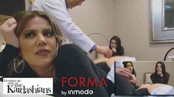 khloe-kardashian-forma-inmode