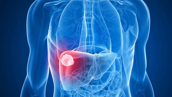 Sintomas del cancer de higado