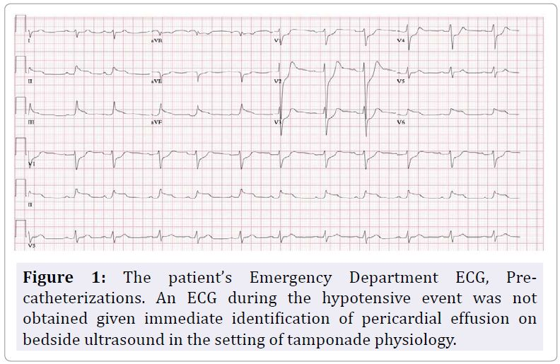 Bedside Echocardiographically Guided Pericardiocentesis