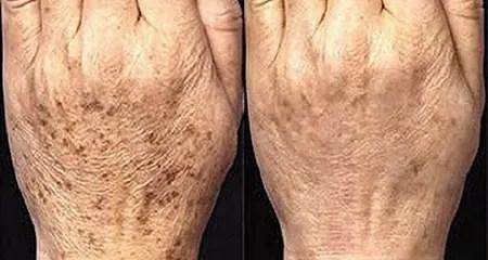 manchas da idade, aprenda como eliminar usando o arroz