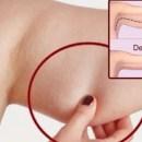 Elimine de vez a flacidez dos braços, coxas e costas