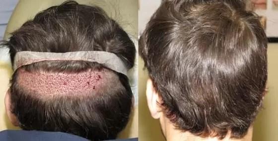 Cirurgia de transplante de cabelo