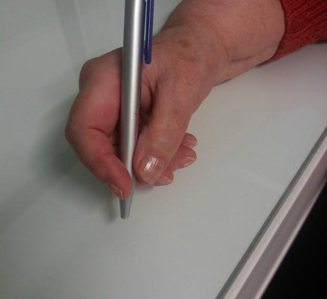 Artrosi alle mani trattata con Ossigeno Ozono terapia.