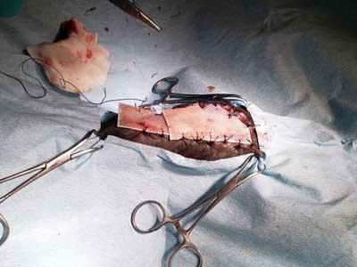 Cerotto prp per curare ferita chirurgica