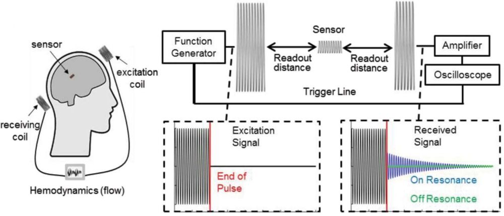 Implantable wireless biosensor monitors cerebral blood