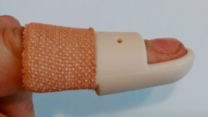 Stax Style Mallet Splint - Fitted